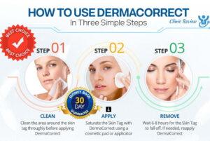 derma correct skin tag remover