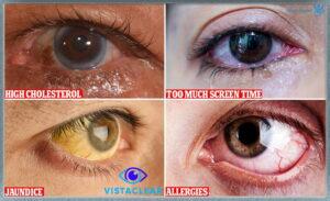 Eye Vision Supplement