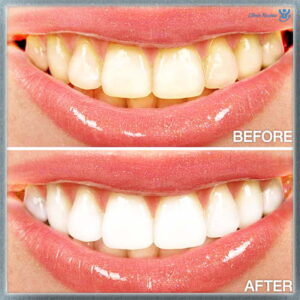Dental health before and after