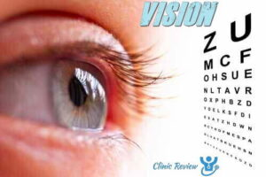 Eye Vision Supplements